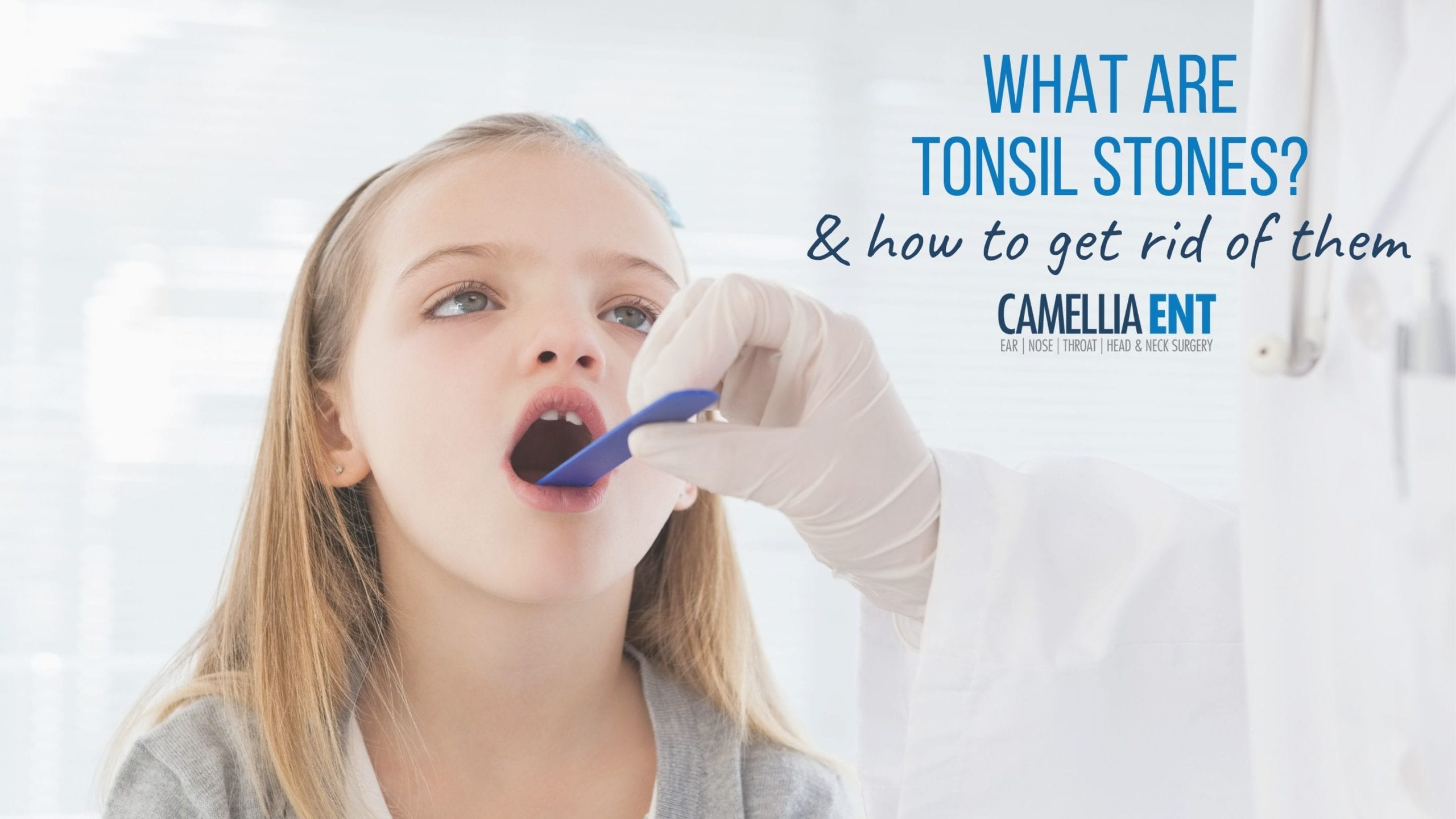 What Are Tonsil Stones And How To Get Rid Of Them?